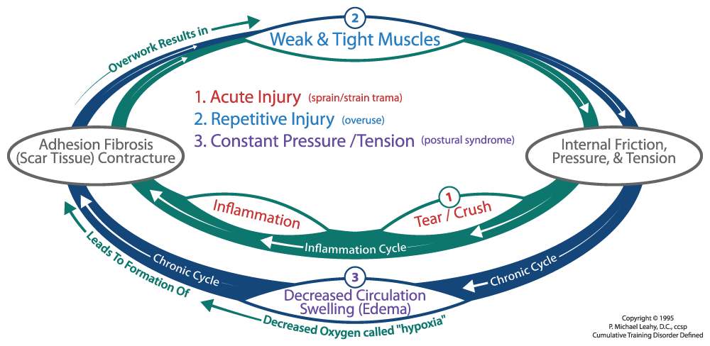 Cumulative Injury Cycle